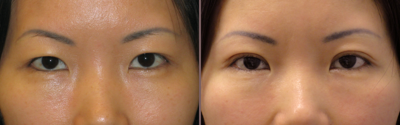 Asian Blepharoplasty_00002.jpg