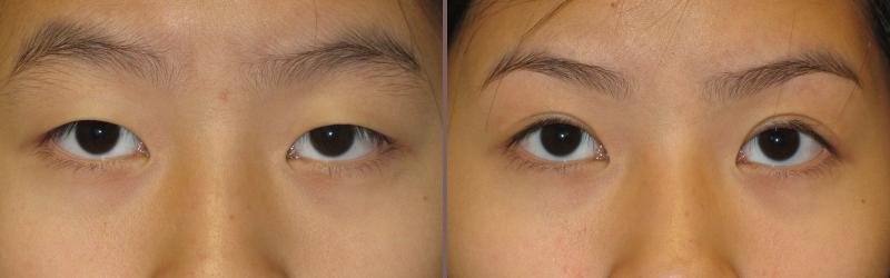 Asian Blepharoplasty_00004.jpg