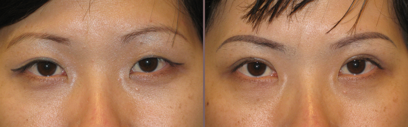 Asian Blepharoplasty_00005.jpg