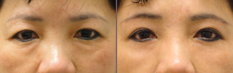Upper Lower Blepharoplasty_00001.jpg
