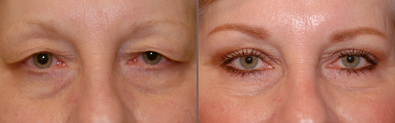 Upper Lower Blepharoplasty_00002.jpg