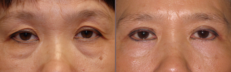 Upper Lower Blepharoplasty_00003.jpg