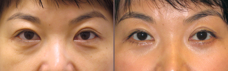 Upper Lower Blepharoplasty_00004.jpg