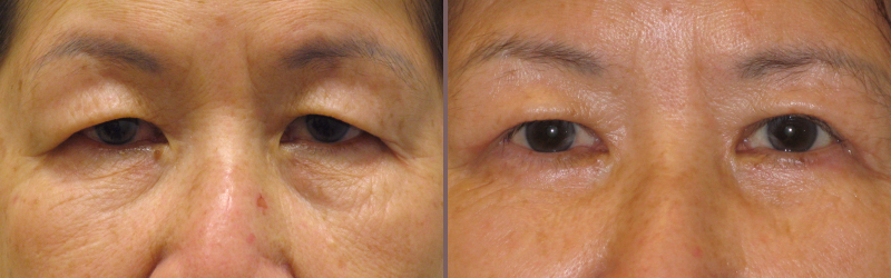 Upper Lower Blepharoplasty_00005.jpg