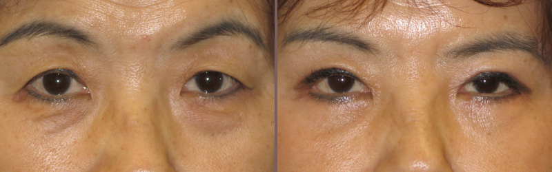Upper Lower Blepharoplasty_00006.jpg
