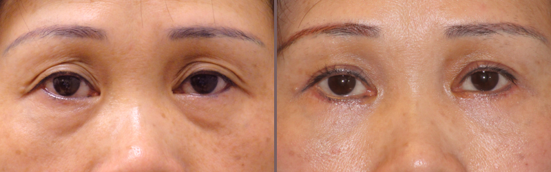 Upper Lower Blepharoplasty_00007.jpg