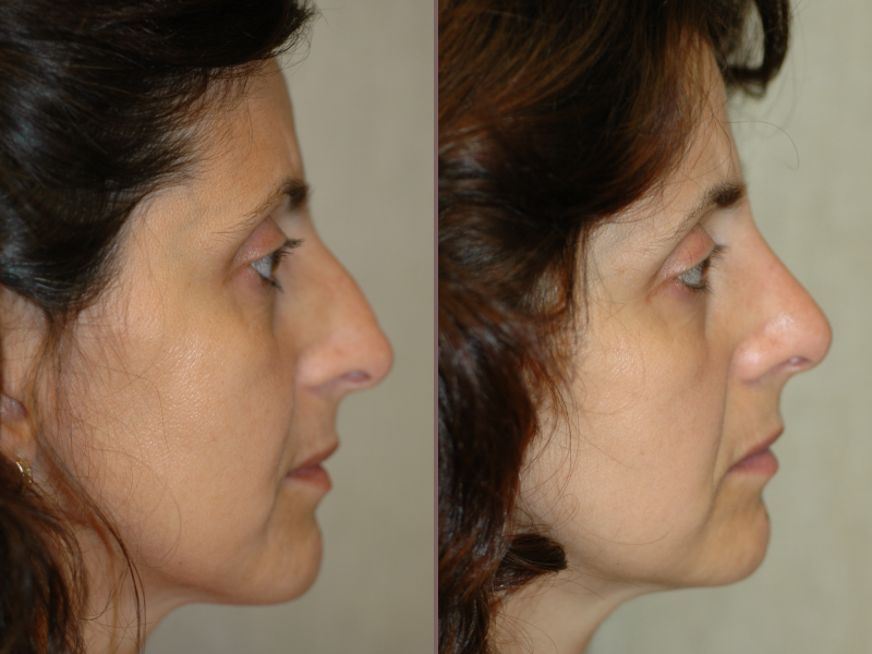 Nose Rhinoplasty_00000.jpg