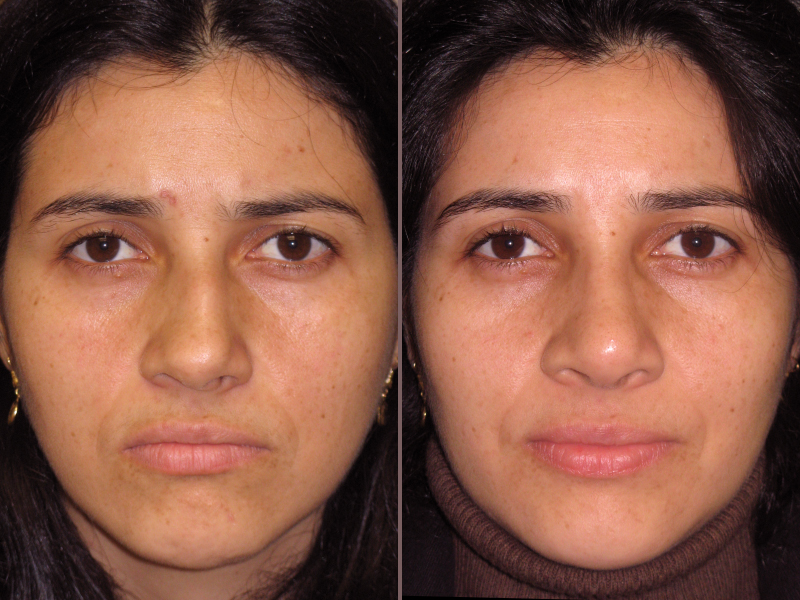 Nose Rhinoplasty_00003.jpg