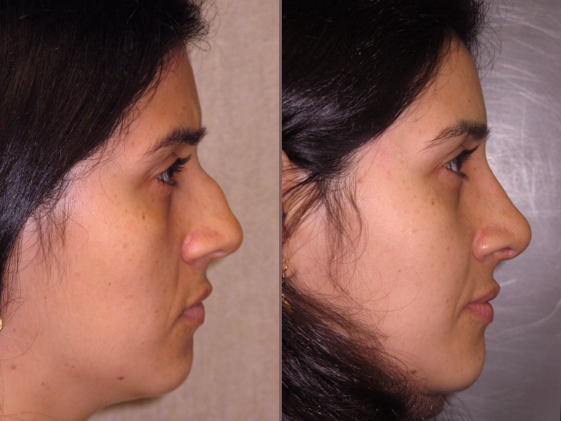 Nose Rhinoplasty_00004.jpg