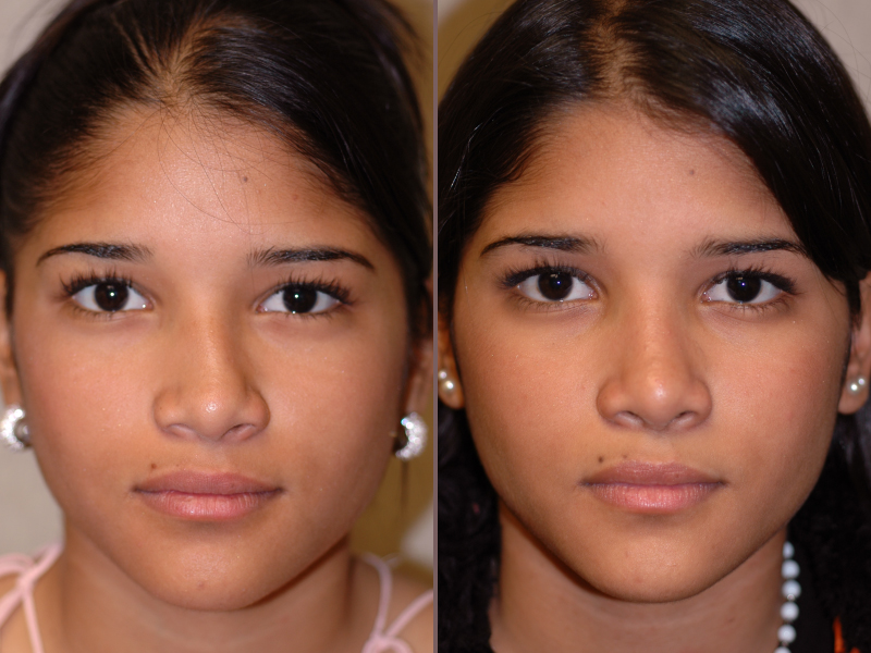 Nose Rhinoplasty_00005.jpg
