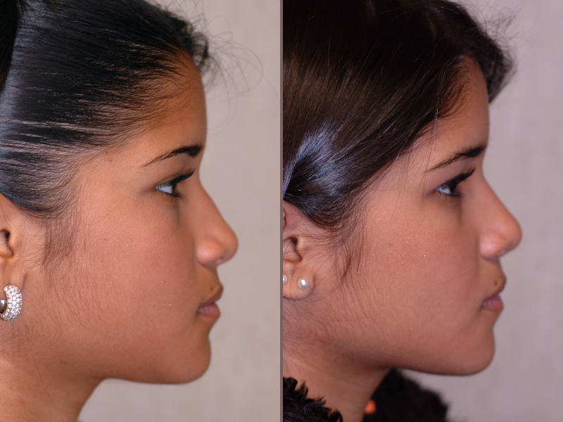 Nose Rhinoplasty_00006.jpg