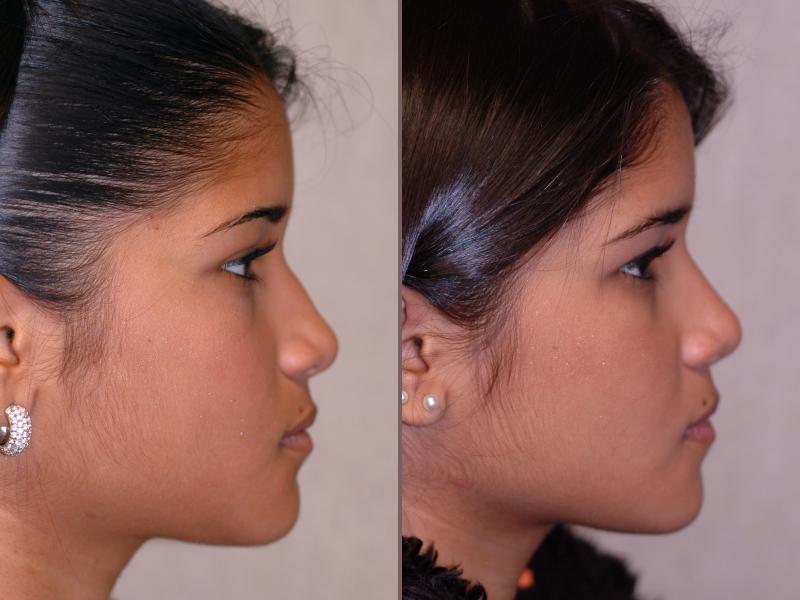 Nose Rhinoplasty_00006.jpg