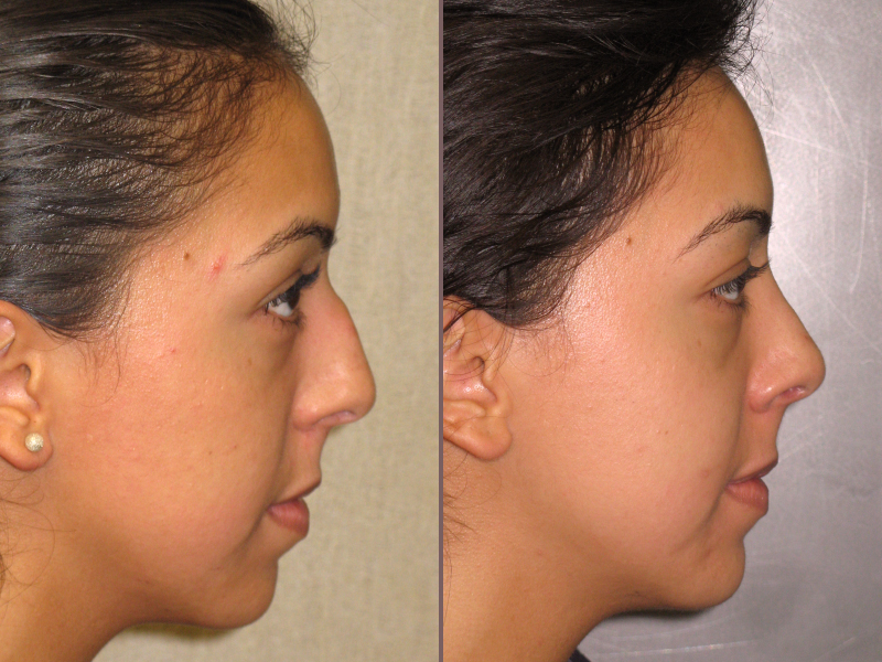 Nose Rhinoplasty_00008.jpg