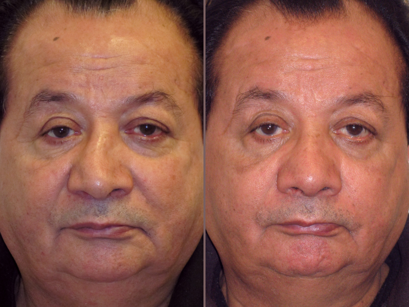 Nose Rhinoplasty_00009.jpg