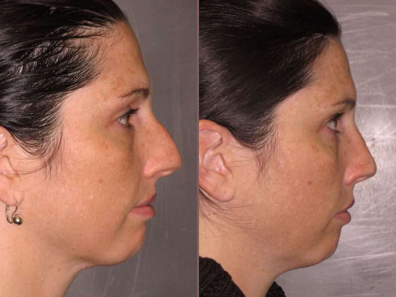Nose Rhinoplasty_00011.jpg