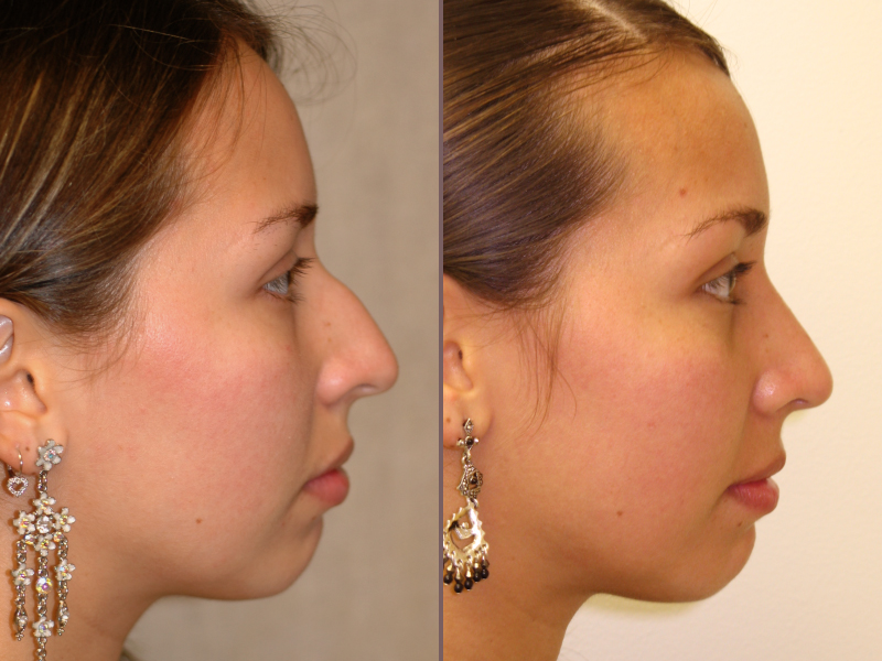 Nose Rhinoplasty_00013.jpg