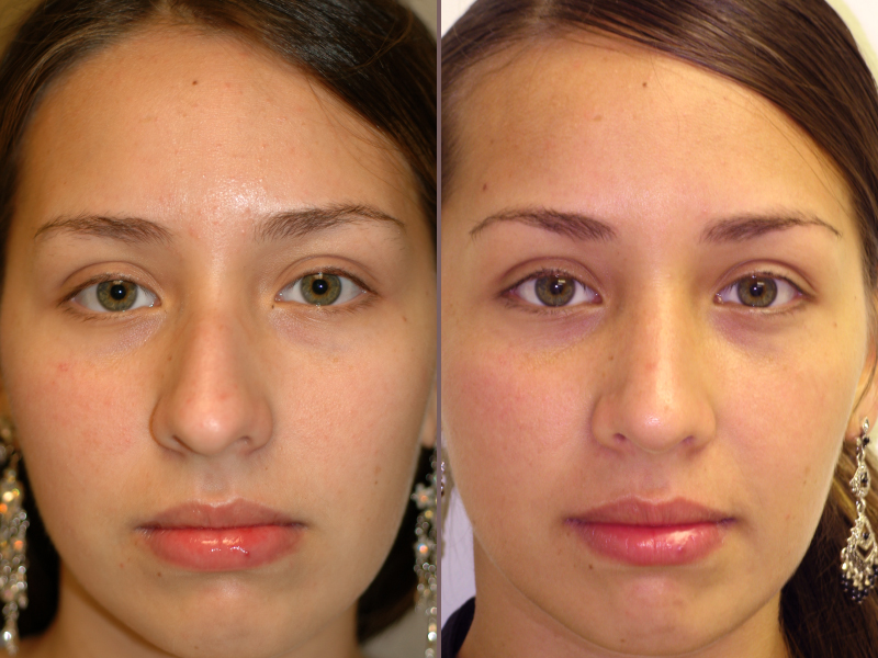 Nose Rhinoplasty_00012.jpg