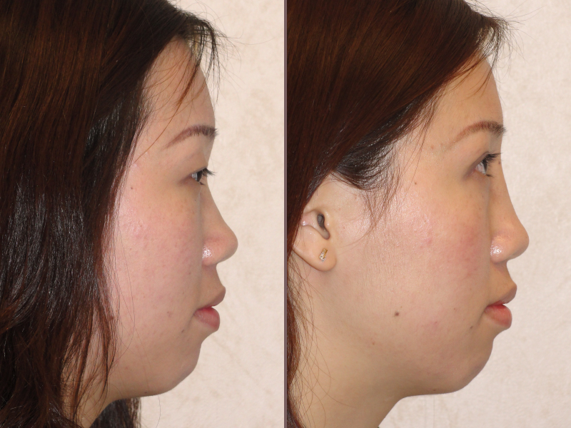 Nose Rhinoplasty_00015.jpg