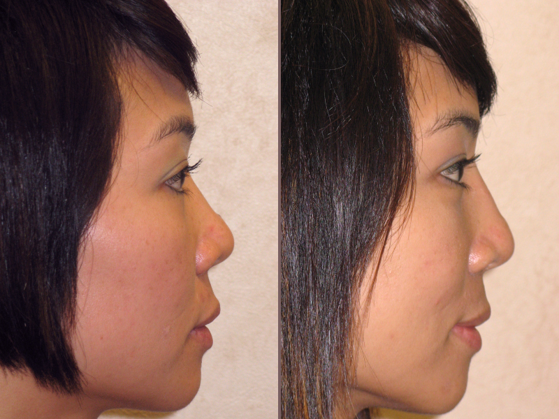Nose Rhinoplasty_00018.jpg