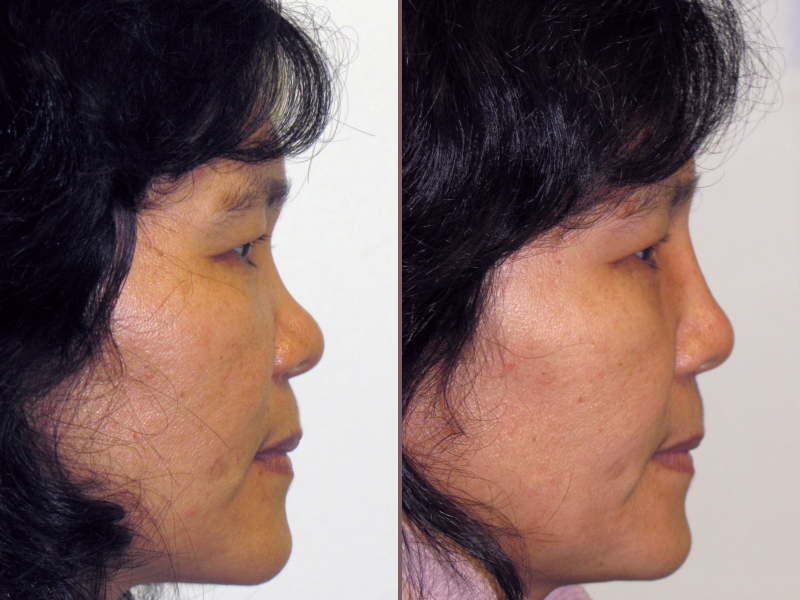 Nose Rhinoplasty_00017.jpg