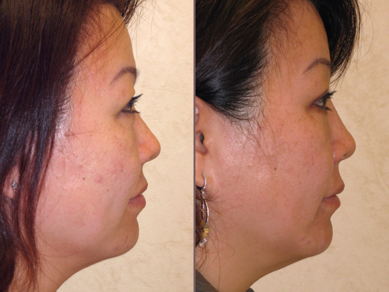 Nose Rhinoplasty_00019.jpg