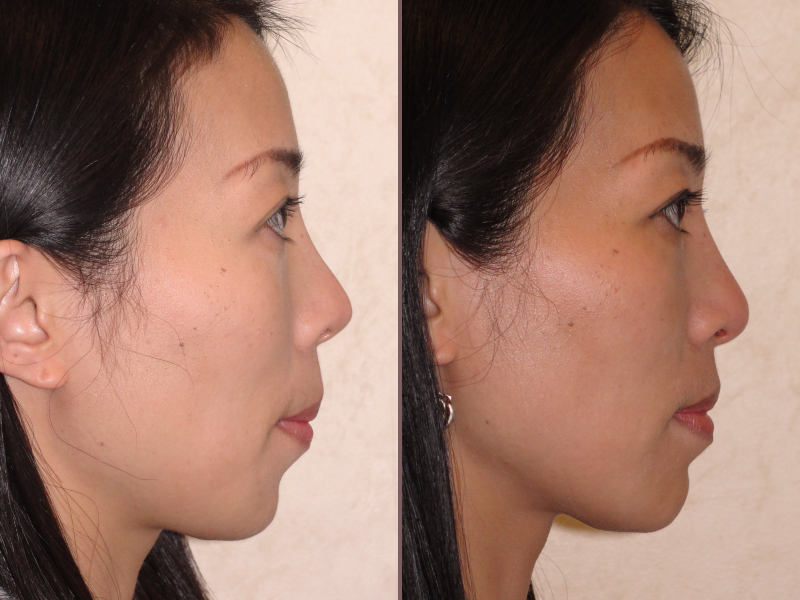 Chin Augmentation_00001.jpg