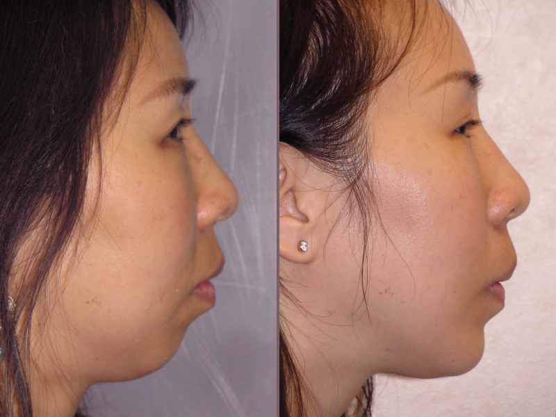 Chin Augmentation_00000.jpg