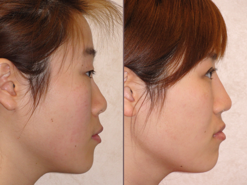 Nose Rhinoplasty_00020.jpg