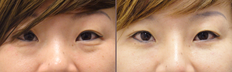 Lower Blepharoplasty_00010.jpg