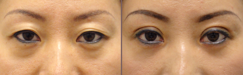 Asian Blepharoplasty_00007.jpg