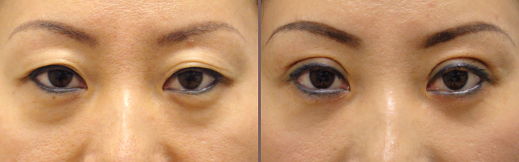 Asian+Blepharoplasty_00007.jpg