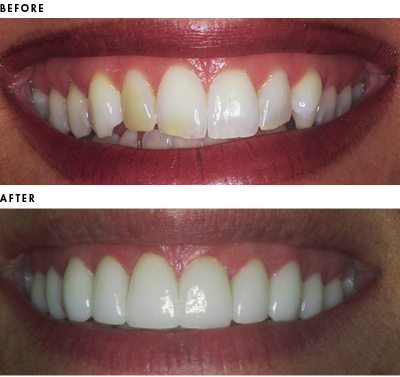 Before and after of the dramatic effects of gingival recontouring