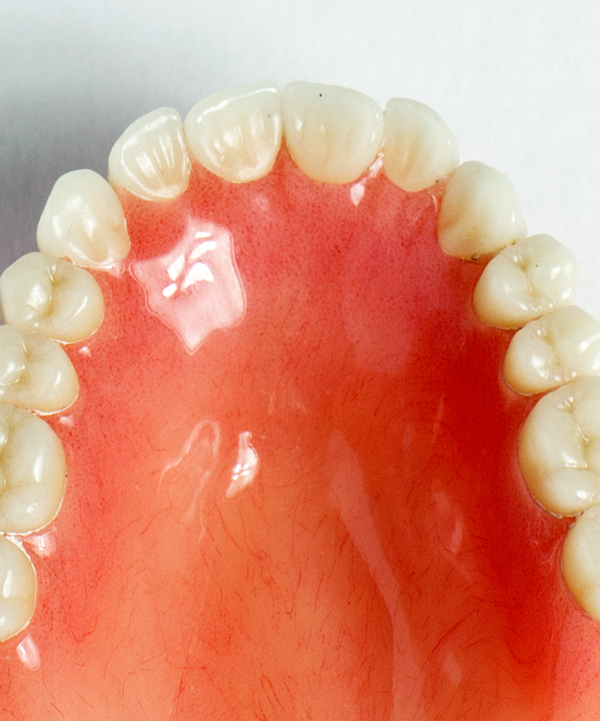 Denture Minneapolis