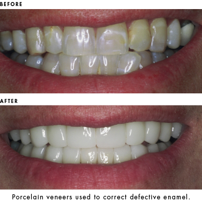 Porcelain Veneers used to correct defective enamel.