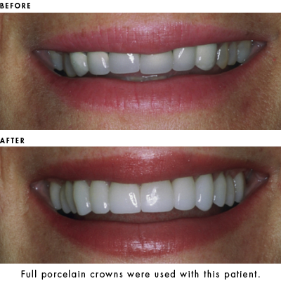 Porcelain Crowns used to enhance smile