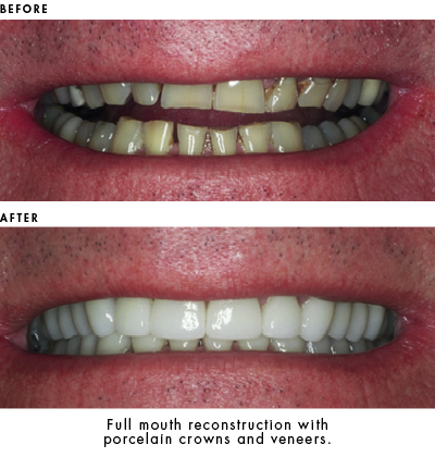 Porcelain crowns and veneers used for full mouth reconstruction