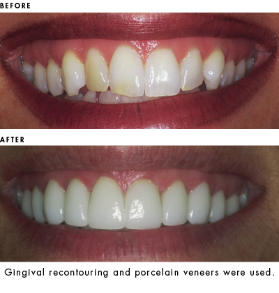 Gingival recontouring and porcelain veneers used to enhance smile