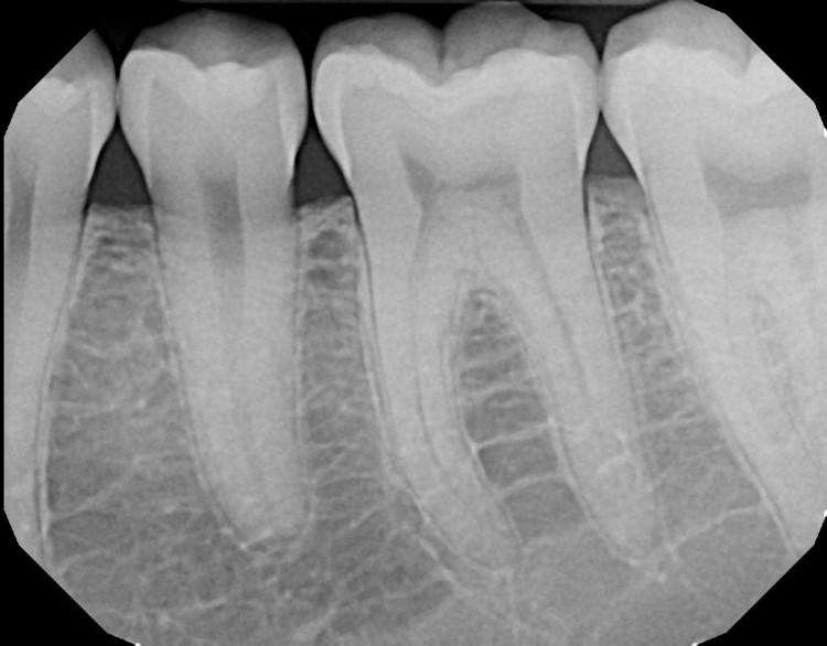 Digital X-ray of teeth