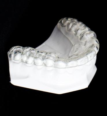 Custom Night Guard by Lorentzen Dental