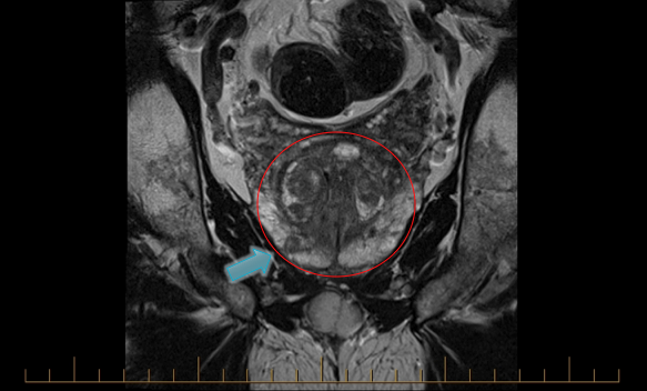 T2-weighted MRI of the prostate (circled) with PIRADS 5 lesion (arrow). Targeted biopsy of this lesion showed Gleason 5+5=10 prostate cancer.
