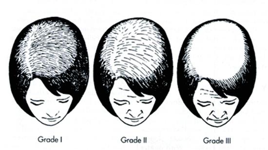 hair loss grading chart