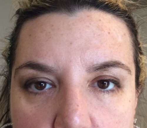 PDO BROW LIFT BEFORE