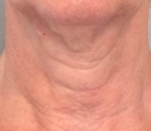 pdo neck lift after
