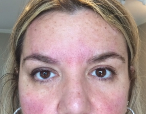 PDO BROW LIFT AFTER