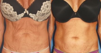 Forma Plus Abdomen - 8 treatment sessions