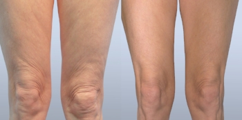 Forma Plus - 3 months after 8th treatment session