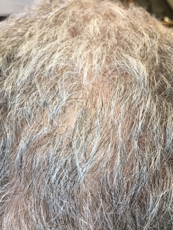 AFTER: Clarity patient after completing PRP therapy