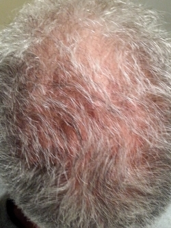 BEFORE: Clarity patient before PRP Hair Therapy