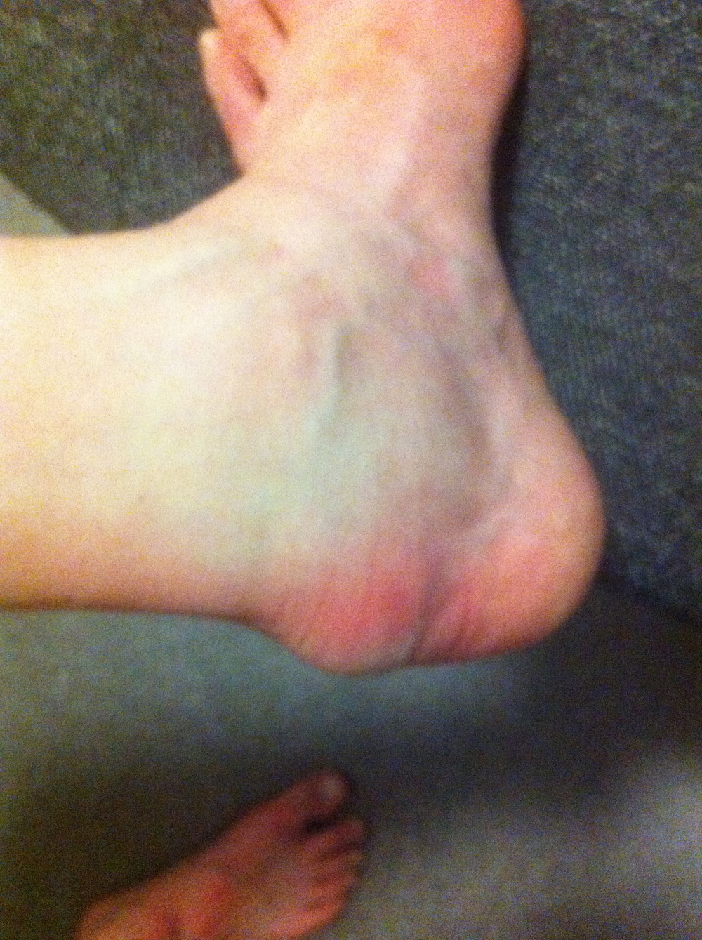 Nice and swollen ankle