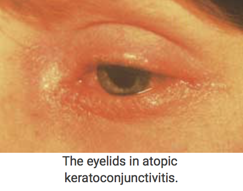 Atopic-k.png